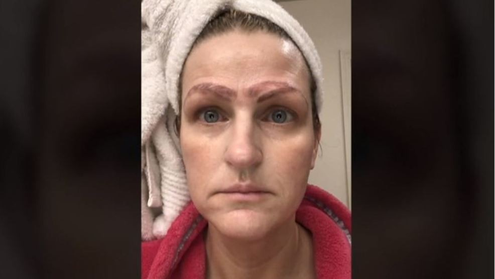 Crazy brows: Missouri woman left with botched eyebrows